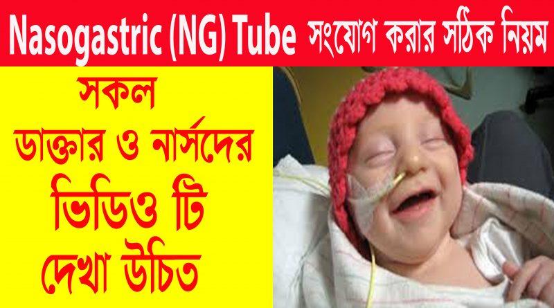 How to Insertion Nasogastric (NG) Tube